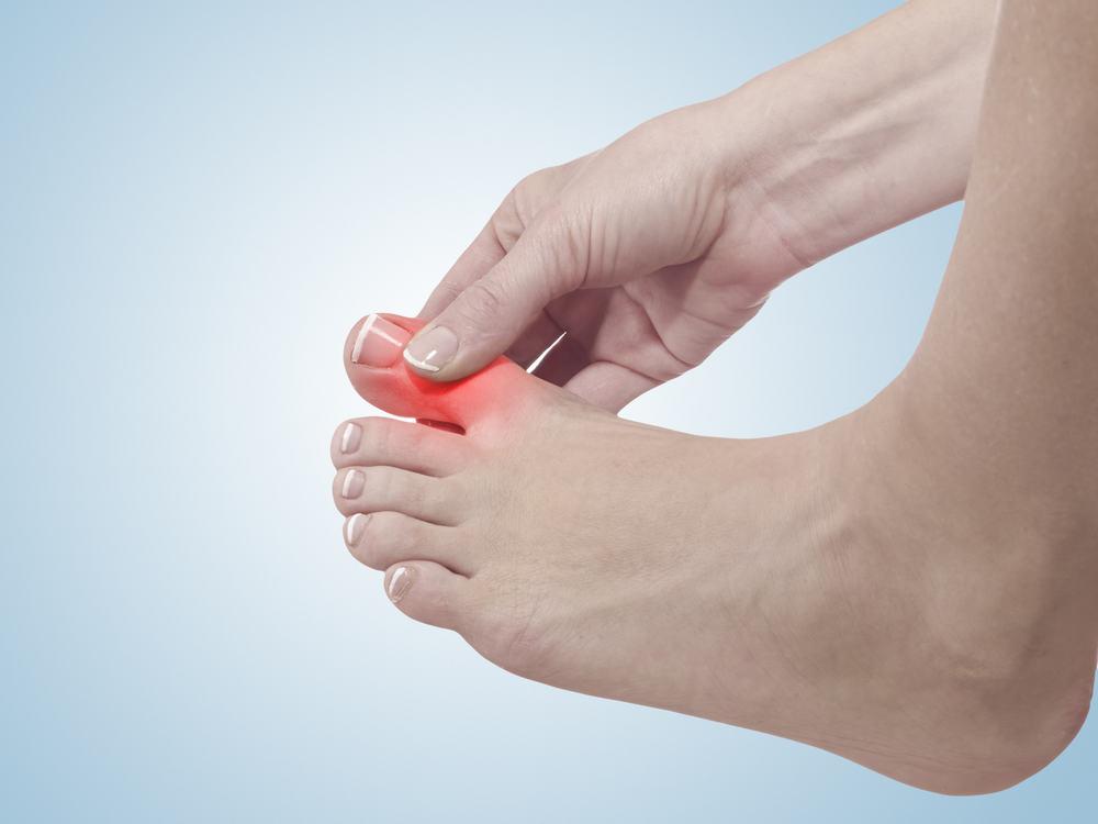Người Bệnh Gout Nên Có Chế Độ Ăn Và Điều Trị Như Thế Nào?