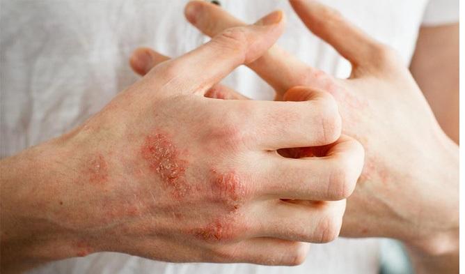 bệnh chàm là gì