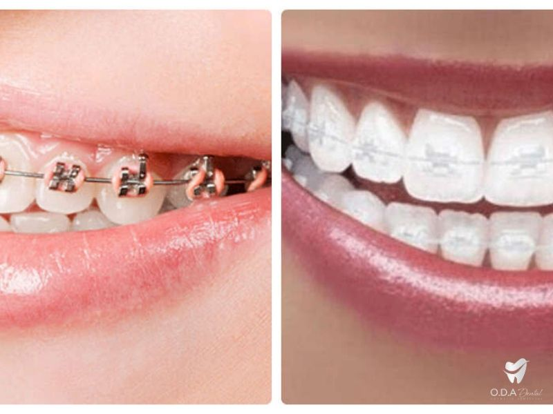 Mài răng để làm răng sứ thẩm mỹ có đau không? - Nha khoa ODA