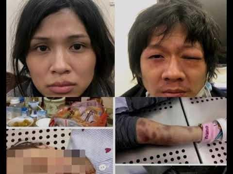 Bản tính ác độc và bệnh hoạn của cặp vợ chồng bạo hành con gái 3 tuổi đến chết - 1