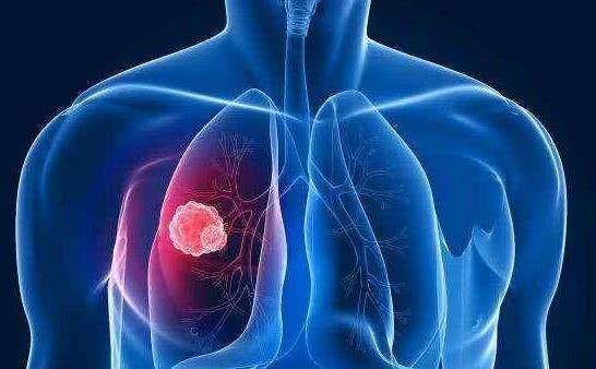 Thấy những khó chịu này, phổi của bạn đã có thể xuất hiện tế bào ung thư, những ai hút thuốc và gần người hay hút thuốc càng không thể bỏ qua