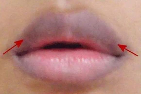 Nhìn vào 'miệng' của phụ nữ, biết 'tử cung' của phụ nữ có khỏe mạnh hay không