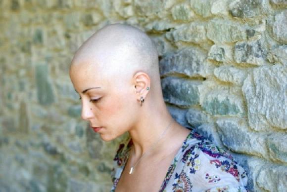 Bị ung thư vú nên phải hóa trị rụng hết tóc, còn ốm yếu không đi làm được, người phụ nữ rụng rời chân tay khi nghe tin... bác sĩ nhầm