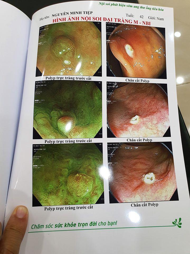 Bệnh polyp đại tràng và polyp dạ dày mà diễn viên Minh Tiệp vừa phát hiện có thể tiến triển thành ung thư không?