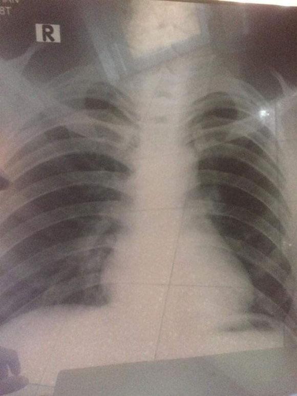 Chia sẻ đẫm lệ về sự hối hận muộn màng của chàng trai trẻ bị ung thư phổi vì hút thuốc lá từ sớm