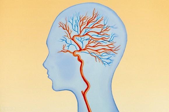 Ba triệu chứng, hãy coi chừng lượng máu cung cấp cho não không đủ
