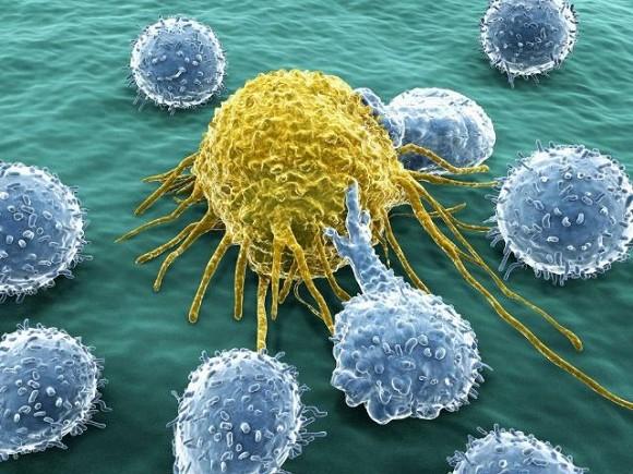 Ba loại thực phẩm kích hoạt tế bào ung thư bạn cần ngừng ăn ngay lập tức