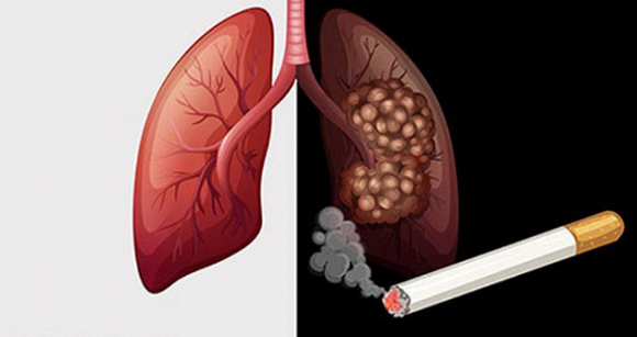 3 loại ung thư cặp đôi, vợ hoặc chồng bị thì người còn lại lập tức kiểm tra càng sớm càng tốt